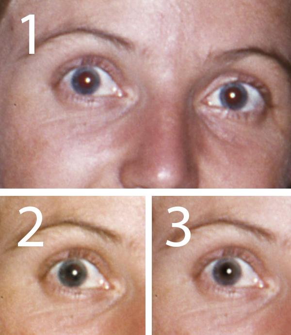 rode ogen correctie